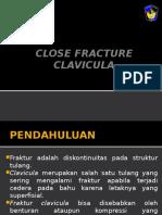 Close Fracture Clavicula