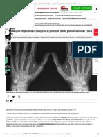 Los Tatuajes e Implantes Tecnológicos Se Ponen de Moda Por Su Bajo Coste y Fácil Acceso