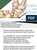 Fractura de Escafoides 150923150821 Lva1 App6892