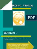 Clase Cateterismo Vesical