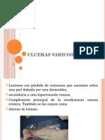 ulcerasvaricosas-120506152310-phpapp02