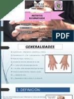 5. Artritis reumatoidea