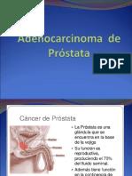 Adenocarcinoma de Próstata[1]