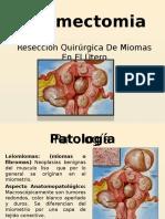 miomectomiadiapo