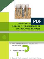 Seminario PERIODONCIA-implantes Dentales
