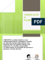 Tuberculosis Pulmonar.