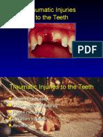 Traumatic Injuries to the Teeth4541