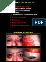 52Thyroid Eye Disease