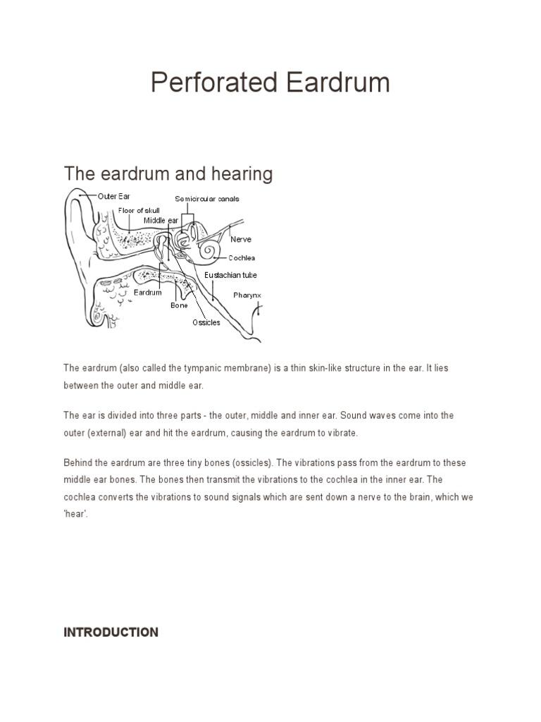 Perforated Eardrum Ear Hearing