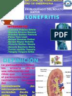 PIELONEFRITIS-EXPOCICION