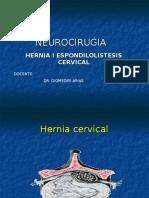 Hernia y Espondilolistesis Cervical