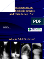 When to Operate on Adult Scoliosis Patients and When to Say No
