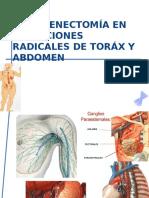 Linfadenectomía en Resecciones Radicales de Toráx y Abdomen