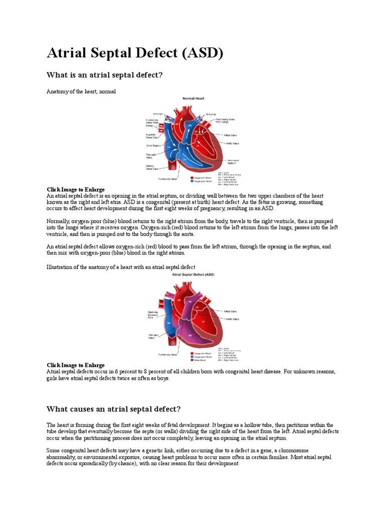 Atrial Septal Defect | Congenital Heart Defect | Heart