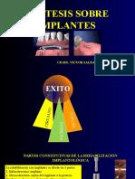 Protesis Sobre Implantes2