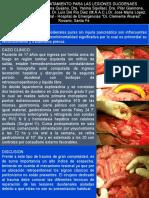 Alternativa de Tratamiento Para Las Lesiones Duodenales Traumaticas
