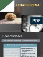 Litiasis Renal Ppt
