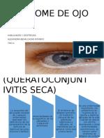 Síndrome Del Ojo Seco (Queratoconjuntivitis Seca)