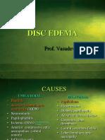 Disc Edema_must Read