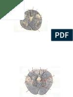 Brainstem Slides With Overlay