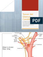 quemodectoma