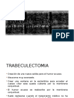 Tratamiento quirúrgico glaucoma.pptx