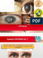 Katarak case report