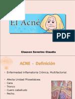 acne y rosacea