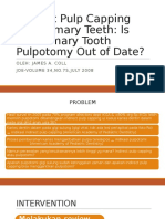 Indirect Pulp Capping and Primary Teeth