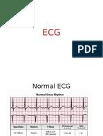 Easy EKG