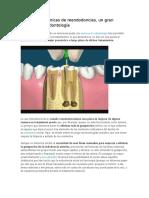 avances odontologicos