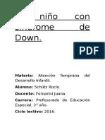 El Niño Con Síndrome de Down