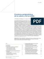 Fracturas Periprotésicas de Cadera y Rodilla 2015
