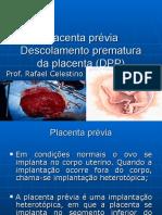 Aula Placenta Previa Dpp