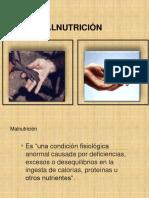 Temaiii Desnutricion 1 1 2014