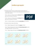 Klasifikasi Gigi Impaksi
