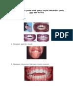 Kebiasaan Buruk Pada Anak Yang Dapat Berakibat Pada Gigi Dan Mulut