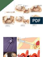 Operasi Laser Pada Prostata