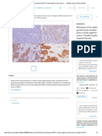 Immunohistochemical Staining of EGFR in Triple Negative Breast Cancers...