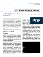 the-hyphecan-cap-a-biological-fingertip-dressing.pdf