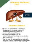 hepatograma anormal