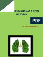 Neoplasias Malignas a Nivel de Torax