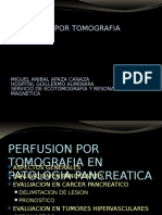 perfusion por tomografía postgrado