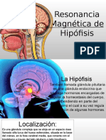 RM de Hipófisis PARA MI Bff
