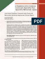Tratamento de Diastema entre Incisivos Centrais Superiores com Aparelho Fixo Combinado a Aparelho Removível