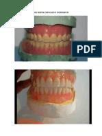 Un Buen Enfilado Dentario
