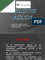 Sinusitis Agd