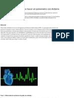 Explicación de Como Hacer Un Pulsometro Con Arduino