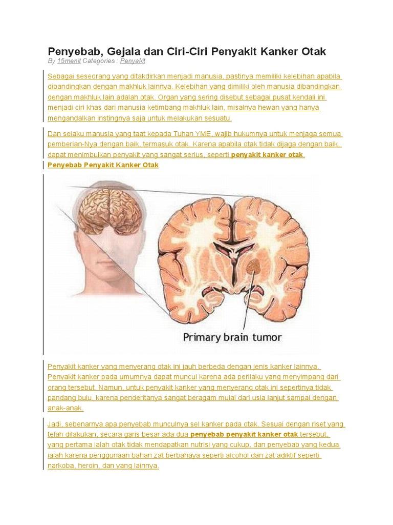 Ciri Ciri Kanker Otak Atau Tumor Otak - Ini Cirinya