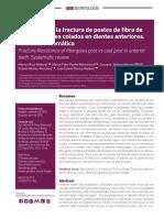 Resistencia a La Fractura de Postes de Fibra de Vidrio vs Postes Colados en Dientes Anteriores